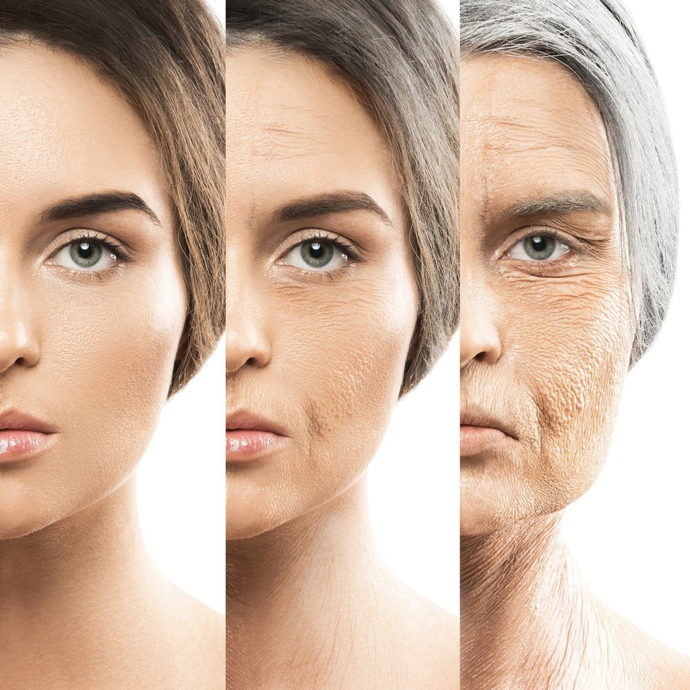 Ageing 2 - Anti Wrinkle Treatments - Delaying the signs of Ageing