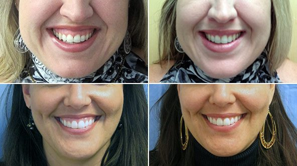 Treatment of gummy smile before and after3 - Gummy smile