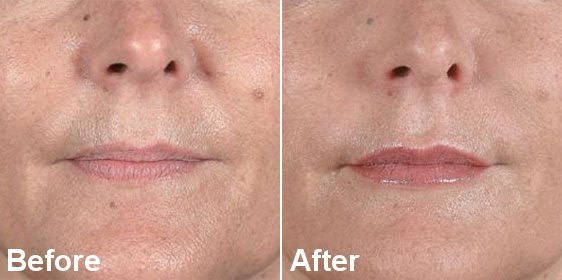 nasolabial folds3 1 4 before after - Nose to Mouth Lines