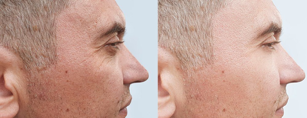 Mens crows feet - Anti-Wrinkle Treatments