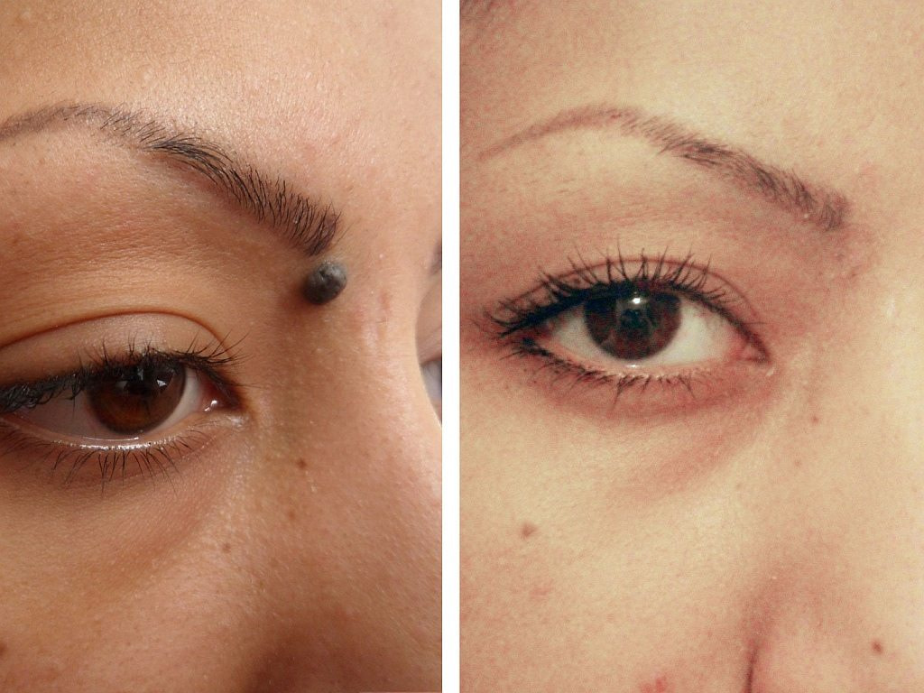 mole Before after Maleena - Mole Removal