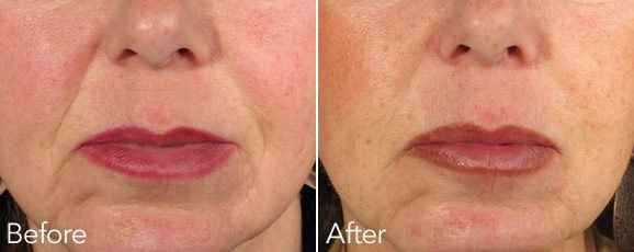 NST Womens Nasolabial Before after - Marionette Lines Treatment an Anti Wrinkle Treatment