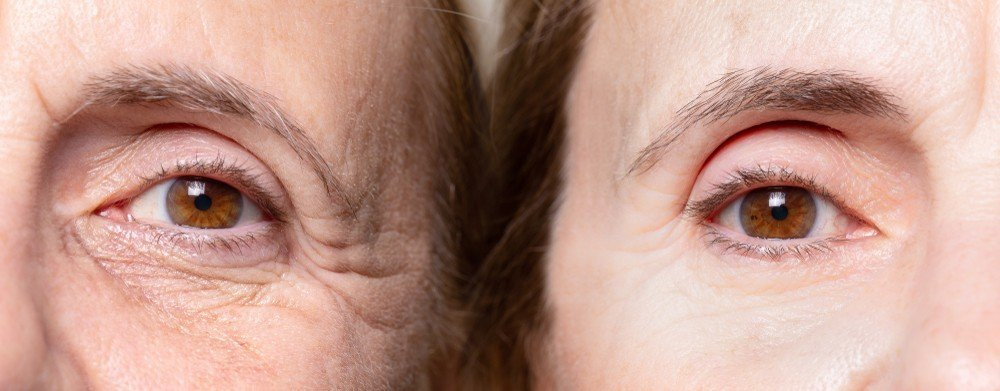 Botox 5 - Smile lines & Crows Feet Botox Treatment
