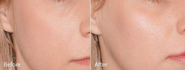 Cheek Augmentation dermal fillers - Cheek Enhancement Treatment