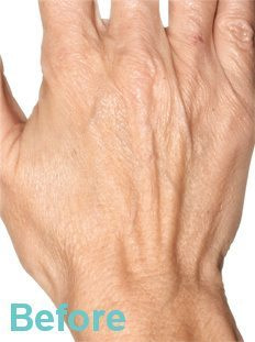 Hand before - Hand Rejuvenation with Platelet Rich Plasma