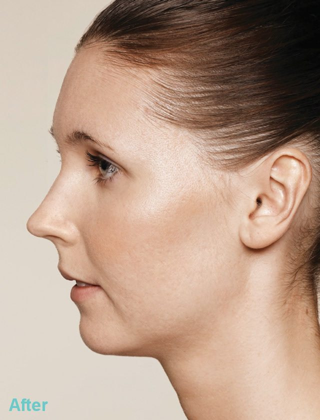 Acne After - Acne and Acne Scarring Treatments