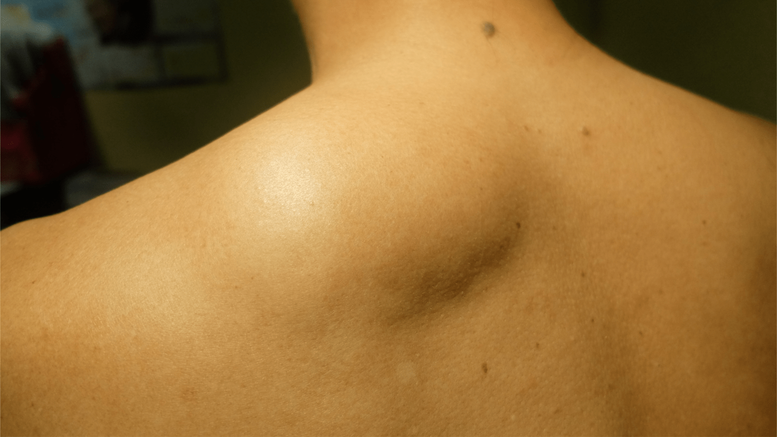 lipoma of shoulder - Lipoma