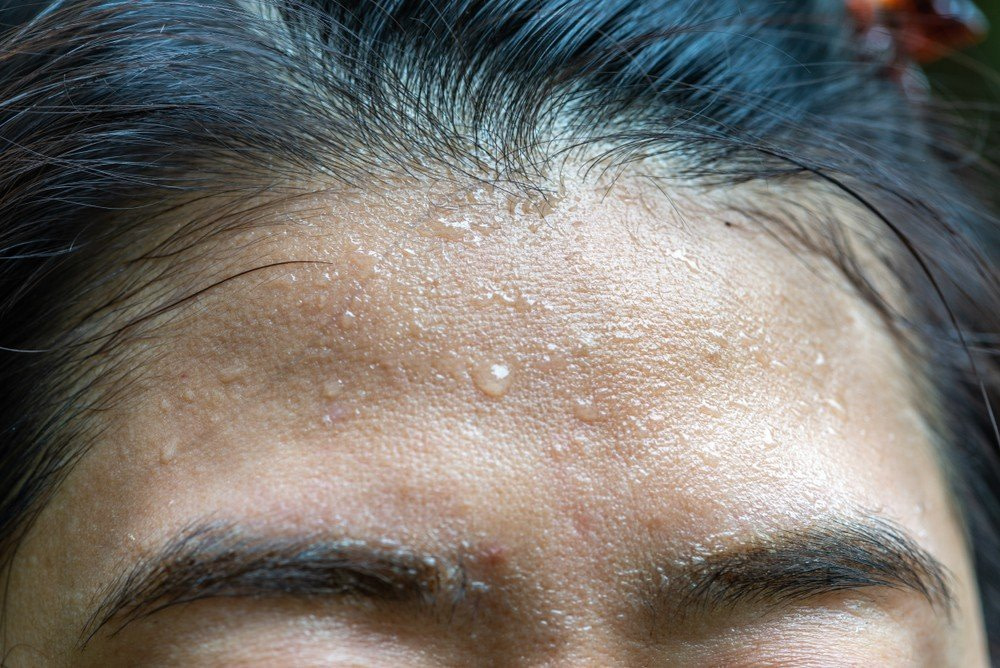 forehead sweating - Excessive Forehead & Underarms Sweating treatment with botox