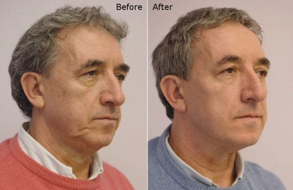 Men face profile before afters - Silhouette Soft Lift