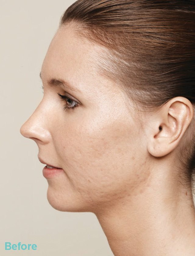Acne Before - Acne and Acne Scarring Treatments