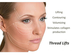SILHOUETTE SOFT THREAD LIFT 300x225 - Diary of a Silhouette Soft Lift Treatment Patient