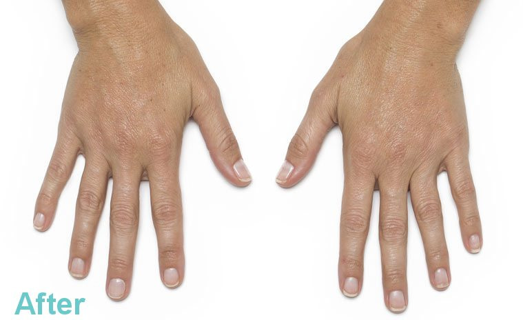 hands leanne47 after - Hand Rejuvenation with Platelet Rich Plasma