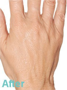 Hand after - Hand Rejuvenation with Platelet Rich Plasma