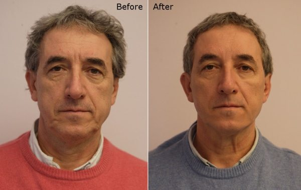 Men face before afters - Silhouette Soft Lift