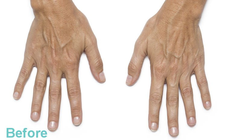 hands leanne47 before - Hand Rejuvenation with Platelet Rich Plasma