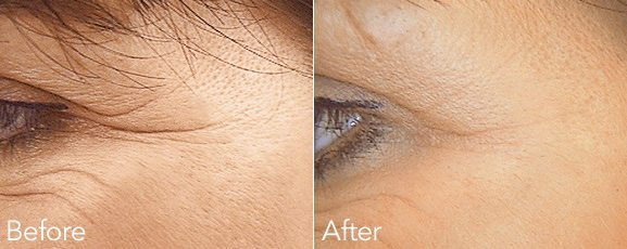 crows feet smile lines - Smile lines & Crows Feet Botox Treatment
