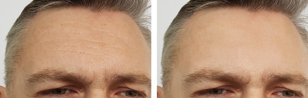 Male Botox 1 - Anti-Wrinkle Treatments