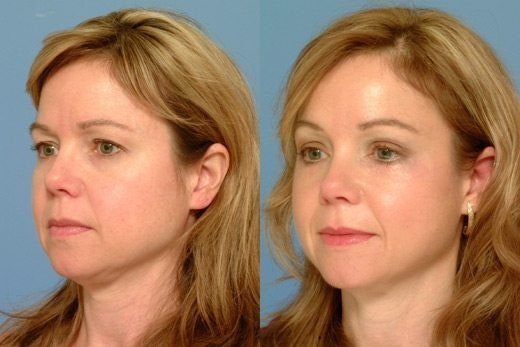 Procedure for Brow Lift before and after3 - Eyebrow Lift Dermal Filler Treatment