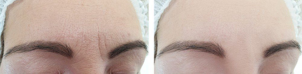 FOREHEAD LINES & FROWN LINES TREATMENT