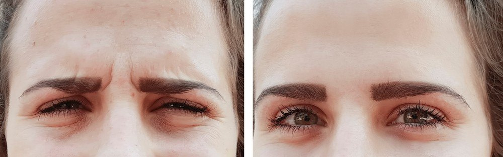VERTICAL FROWN LINES BOTOX TREATMENT