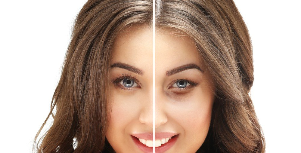 Liquid facelift with dermal fillers