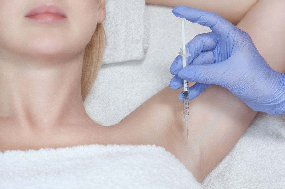 Excessive Forehead & Underarms Sweating treatment with botox 4