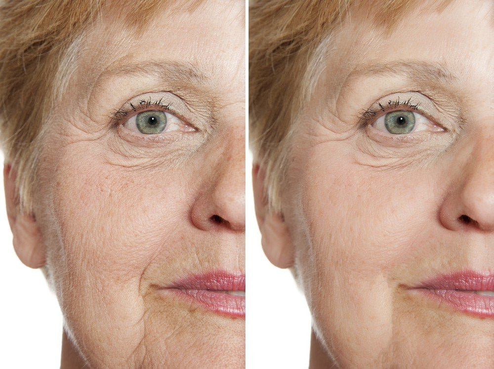 SMOKERS' LINES BOTOX TREATMENT RESULTS