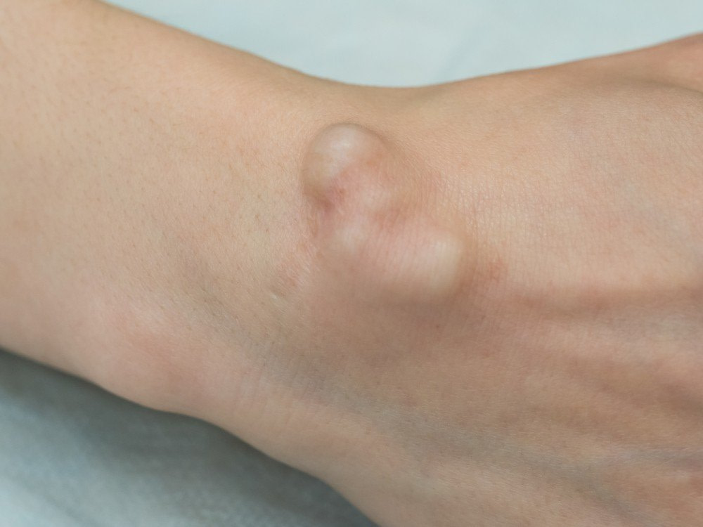 Gangion-Cyst-on-left-wrist-for-treatment