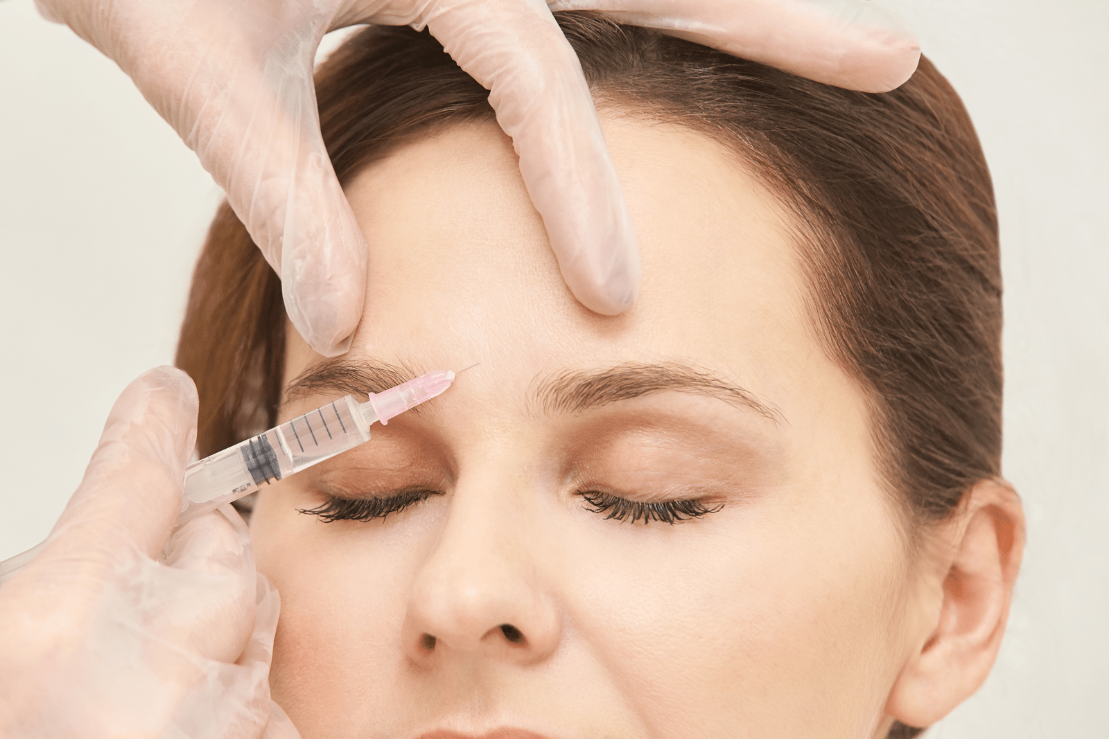 Anti-Wrinkle-Treatment-at-Excellence-Medical