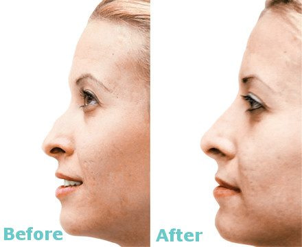 NOSE RESHAPING WITH DERMAL FILLERS