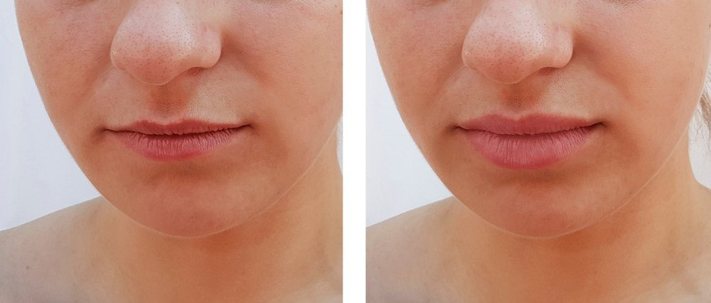 Lip treatment with fillers