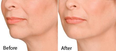 Jaw-line treatment-before and after photo