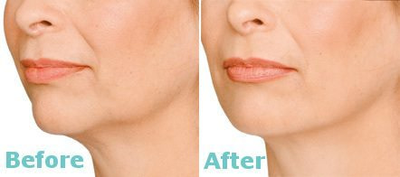 JOWLS AND LOWER JAW LINE CONTOURING RESULTS