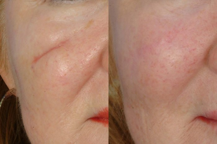 DERMAL FILLER SCARS TREATMENT RESULTS