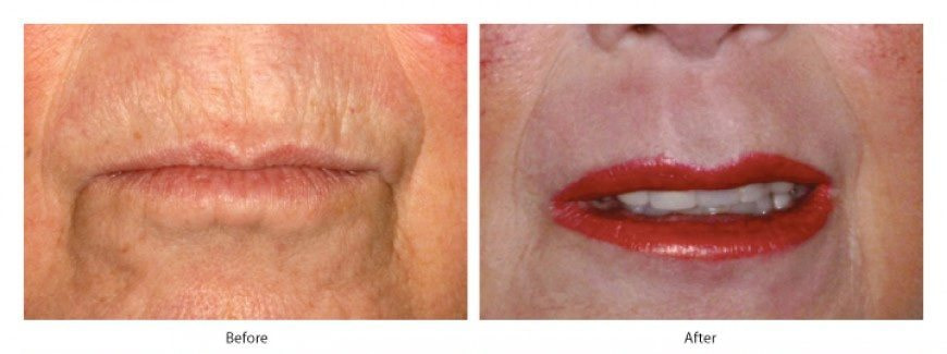 upper lip barcode lines treatment-before and after photo