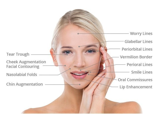 DERMAL FILLER FACELIFT TREATMENTS