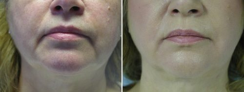 Marionette lines dermal filler treatment before and after treatment