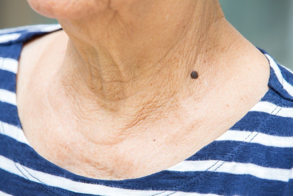 WRINKLED NECK BOTOX TREATMENT RESULTS