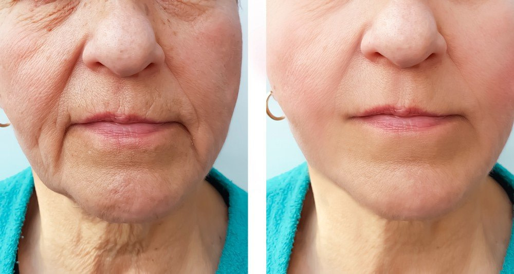 MARIONETTE LINES BOTOX TREATMENT BEFORE & AFTER RESULTS