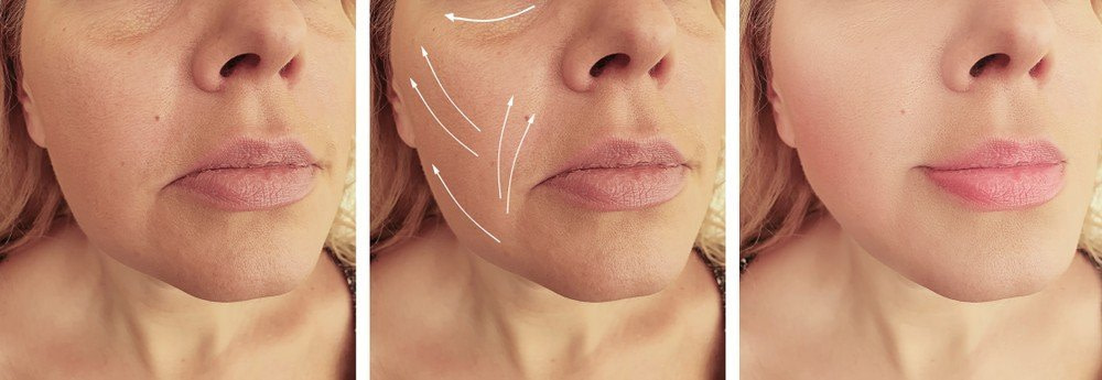 Facial remodelling for rounded and square shape face to gently elongated shape 1
